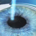 Cirugía ocular en Valencia, un regalo de la ciencia a tu alcance
