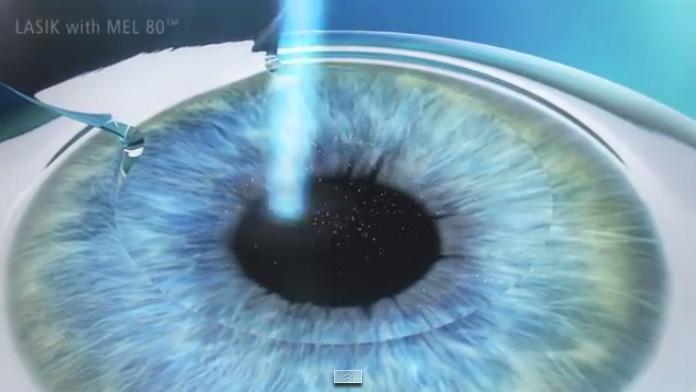 Cirugía ocular realizada en Valencia con el método Lasik
