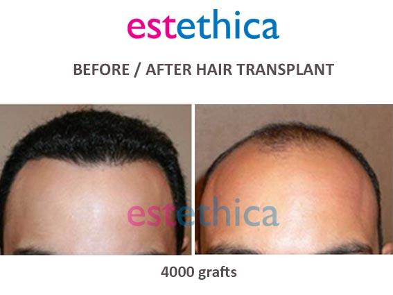 trasplante capilar en clinica estethica